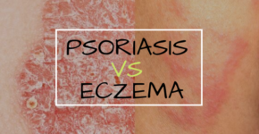 Psoriasis vs Eczema